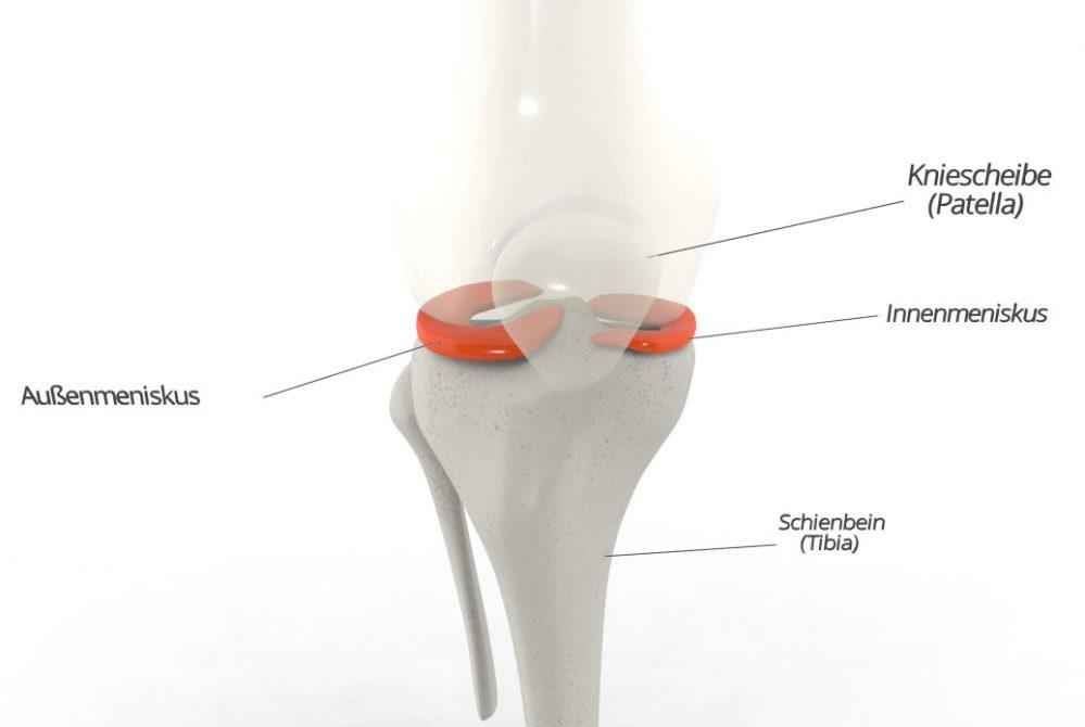 Schmerzen im Knie: Meniskus